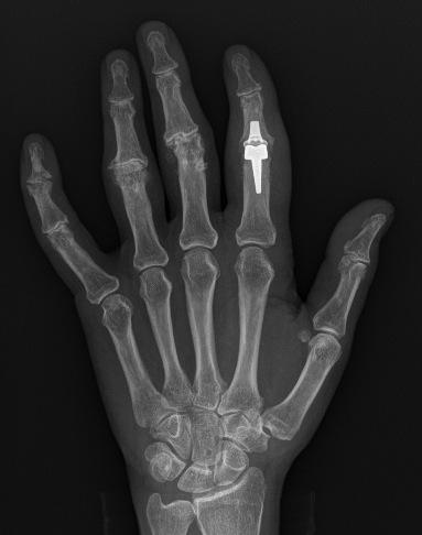 Artrosis dedos