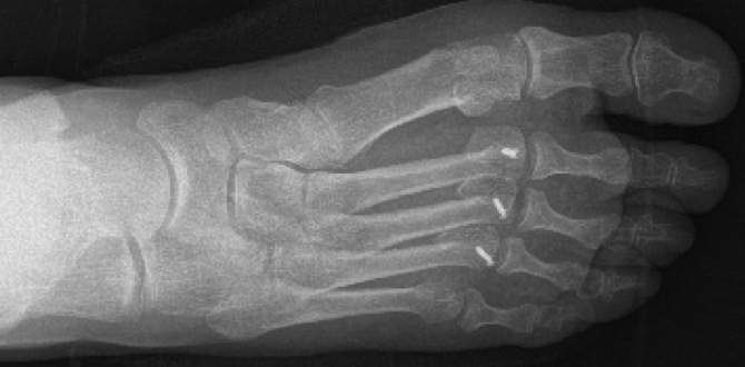 Osteotomias-Weill