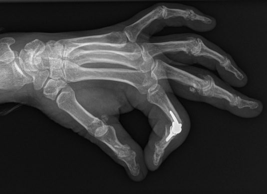 Protesis interfalangica