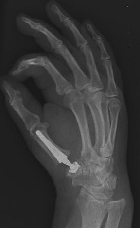 Rizartosis, protesis arpe