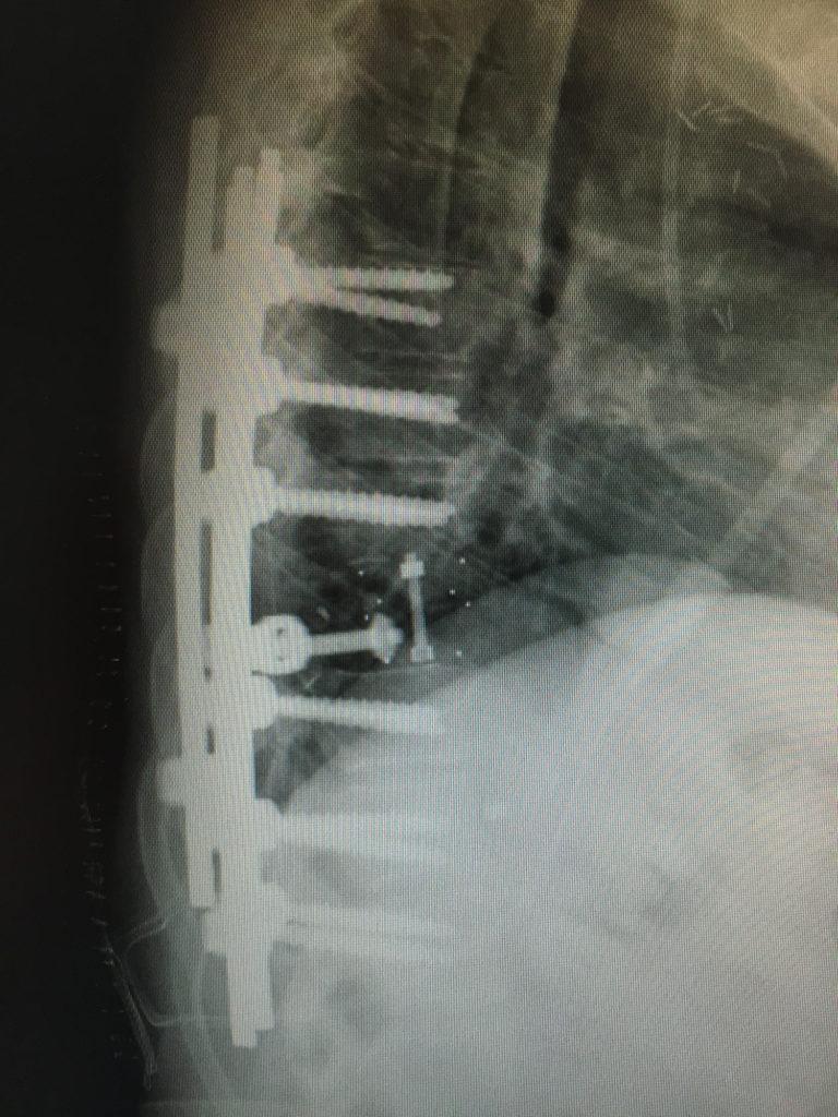 Metástasis vertebrales